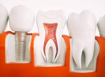 Dental Implants Near Me - El Paso, TX
