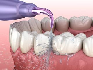 Teeth Cleaning - Dentist Near Me - El Paso, TX